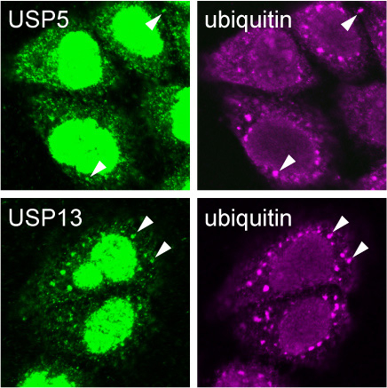 Evidence of USP5, USP13 and ubiquitin chains inside stress granules.