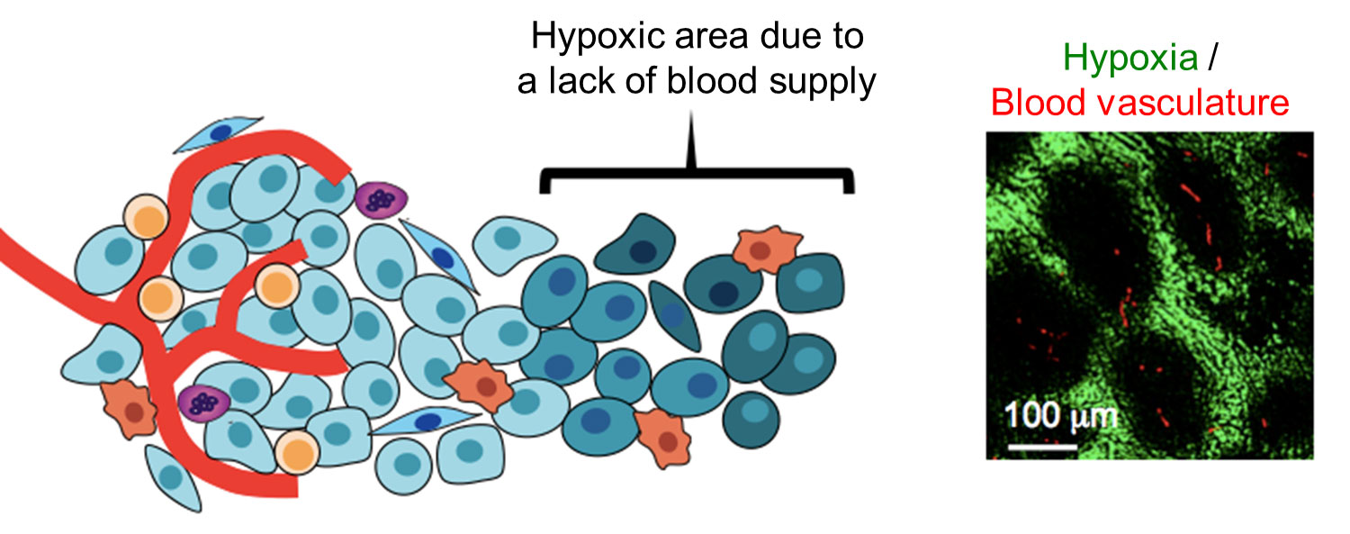 Hypoxic microenvironment in tumor tissues