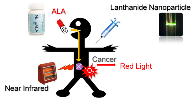 Photodynamic therapy of cancer using near-infrared and lanthanide nanoparticles.