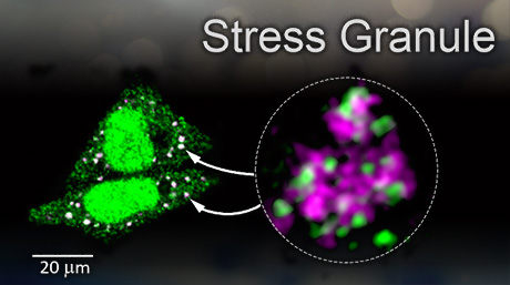 Goodbye 'stress granules': Study expands possibilities for treating neurological diseases
