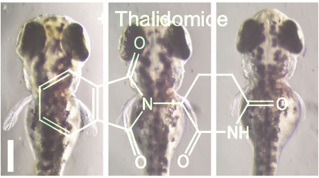 The story of thalidomide continues